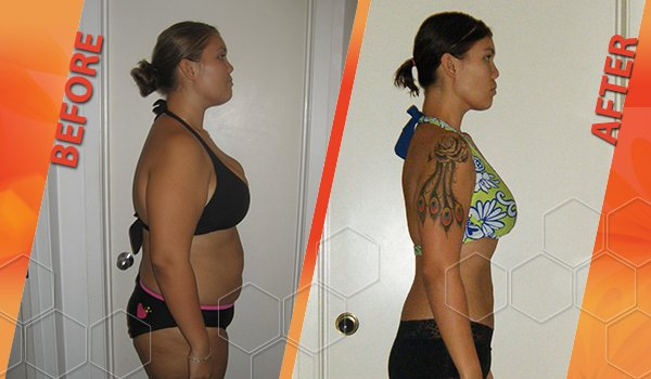 HCG diet before and after picture